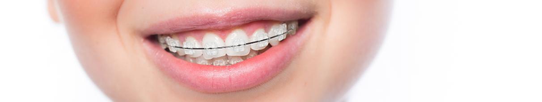 Appareils dentaires